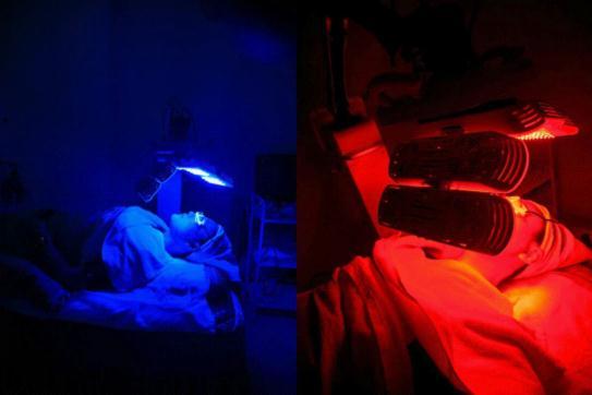 红蓝光祛痘体验,只留青春不留痘