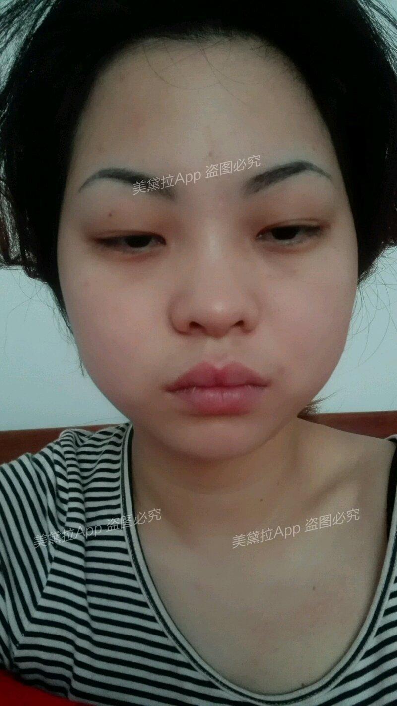 想在武汉做眼睛和祛疤,求推荐医院