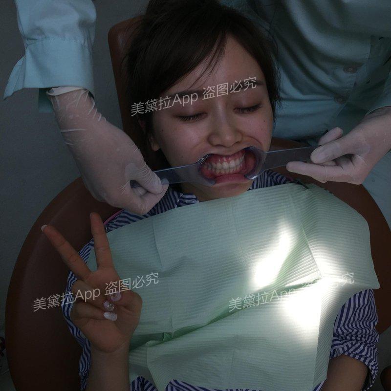刚做完活性牙模美白,期待变大白牙