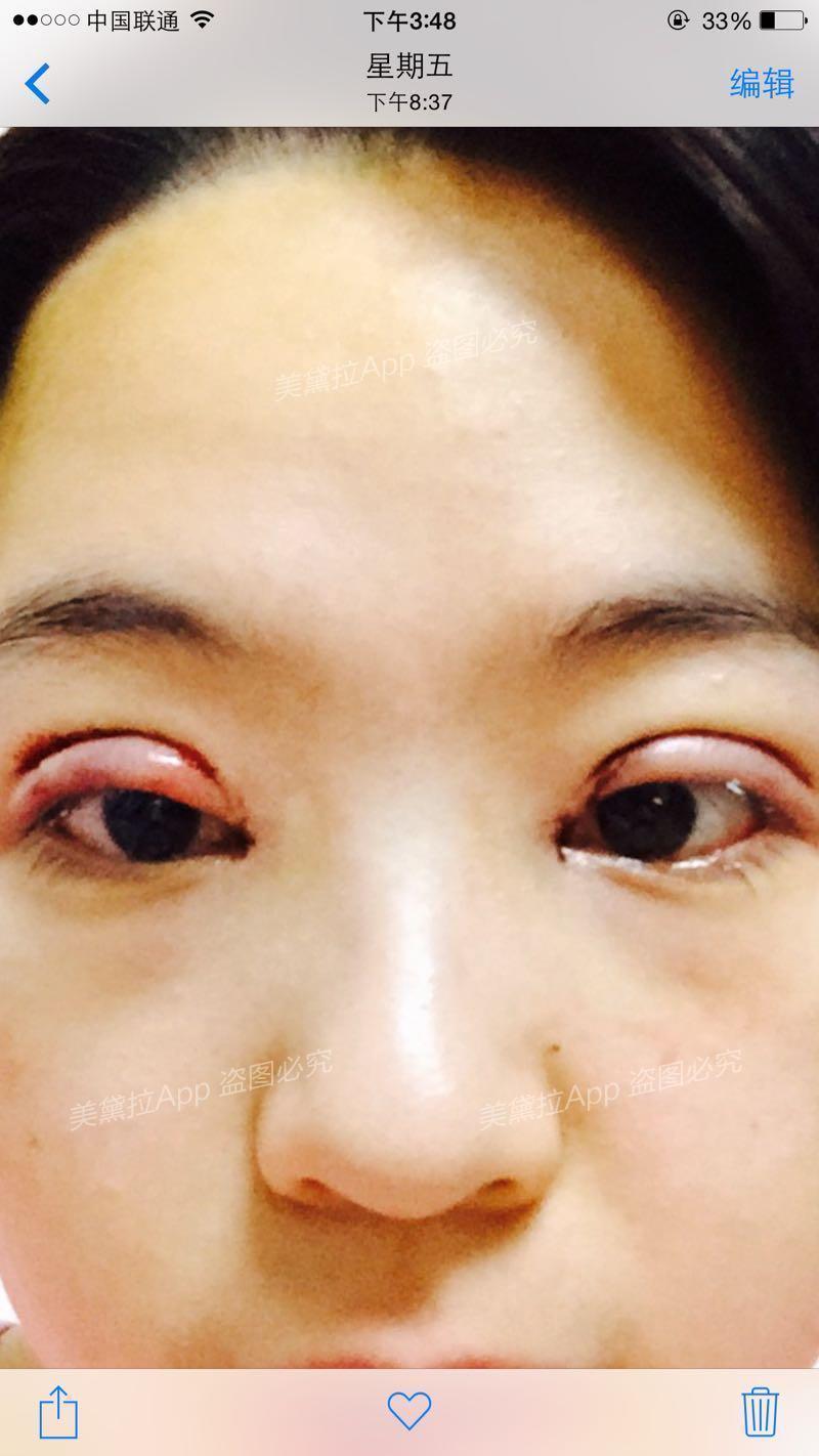 眼角旁有痣代表什么图解