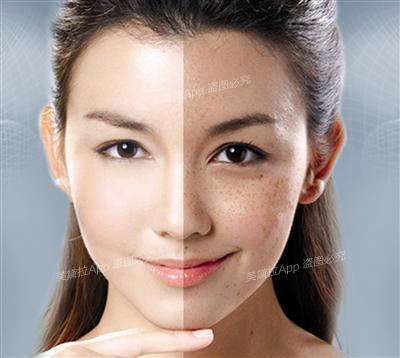 美白面膜多含荧光剂 祛斑仍要靠激光