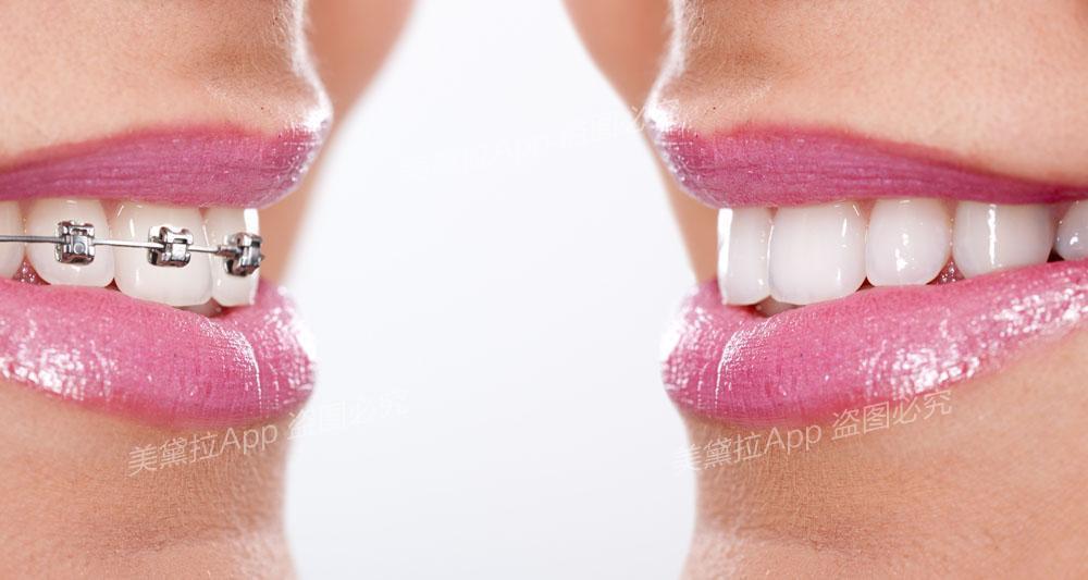 矫正牙齿,做烤瓷牙非捷径且危害不少